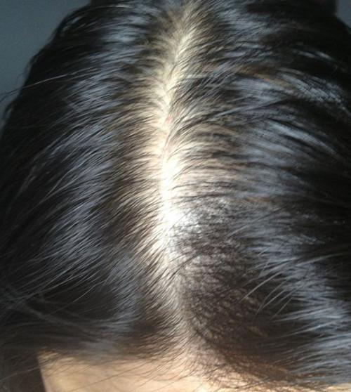海飞丝丝源复活头皮净化头皮头发按摩膏图片